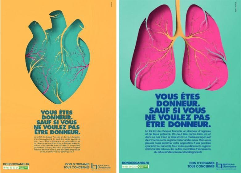 donneur d'organes présumé